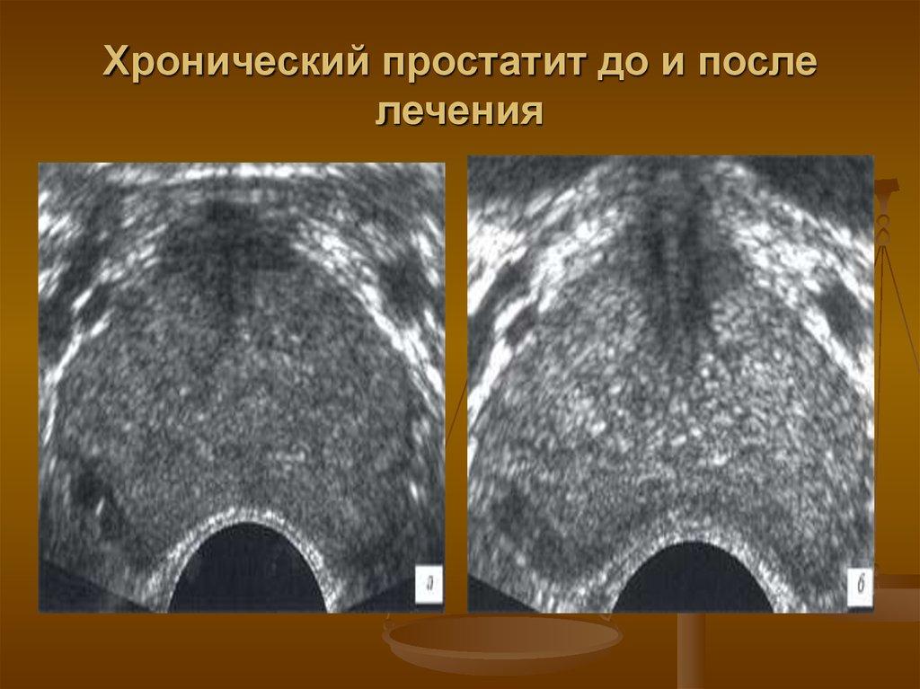 Атонический простатит лечение простатит прозрачная сперма